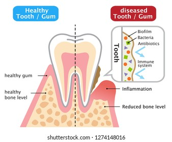 healthy and diseased gum. oral biofilm. dental and health care concept