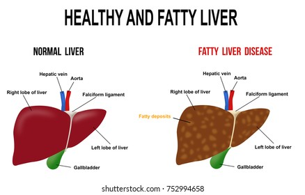 Fatty liver images stock photos vectors shutterstock healthy and fatty liver vector illustration for basic medical education for clinics ccuart Image collections