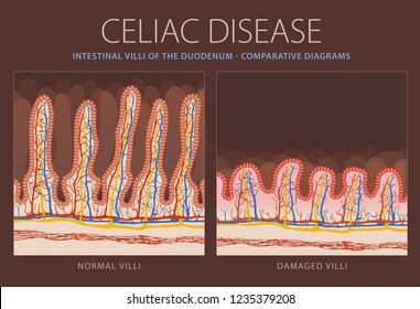 Healthy intestinal villi and damaged villi in celiac disease - comparative diagram - cross-section of the enlarged part of the duodenum - full color