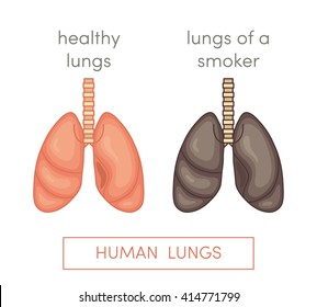 Healthy lungs and smoker's lungs. Simple vector illustration in cartoon style.