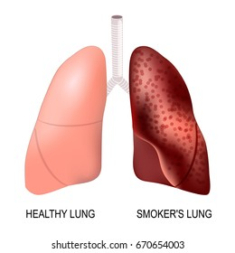 healthy lungs and smoker's lungs. Vector illustration