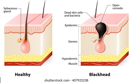 Healthy skin and Blackheads