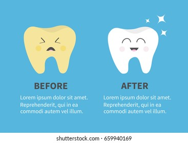 Healthy smiling tooth icon. Sining star. Crying yellow bad ill teeth. Before after Infographic Template with text. Cute character. Oral dental hygiene. Baby background. Flat design. Vector