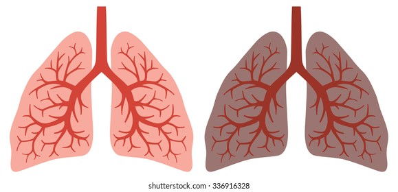 healthy and smokers lung before and after a lifetime of smoking