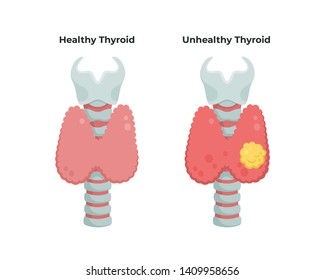 Healthy Thyroid gland and unhealthy thyroid with Inflammation and lump, thyroid cancer concept, flat illustration isolated on white background. Medical  infographic elements.