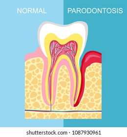 healthy tooth and tooth with periodontal disease. anatomy of human organs. Tooth periodontal disease. Vector image tooth Periodontitis disease