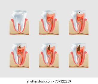 Healthy untreated tooth and dental caries or cavities icon set. Severity of tooth destruction.