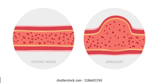 Healthy vessel and sick vessel with aneurysm with blood cells flat vector illustration