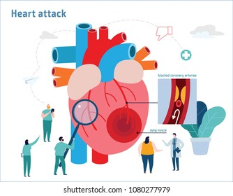 Heart attack Atherosclerosis vector illustration.healthcare medical concept.Miniature doctor and nurse team specialists.flat cartoon icons design forweb banner mobile background