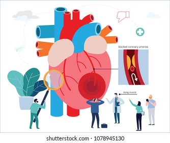 Heart attack infographic.
