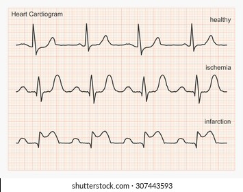 Heart cardiogram waves. Three types of cardiograms: healthy heart rhythm, ischemia, infarction. Graph paper with ECG graphic line. Vector illustration.
