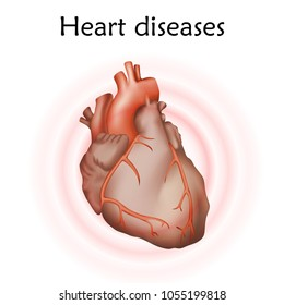 Heart diseases. Heart muscle. Anatomy illustration. Colorful image, white background.