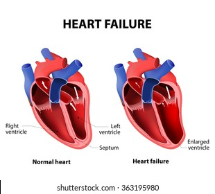 Heart failure or congestive heart failure