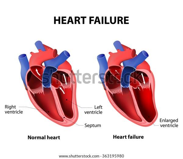 Heart failure or congestive heart failure