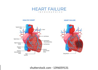 Heart Failure Medical Infographic Chart Composition Poster Illustration, Suitable For Education, Presentation, Print and Other Related Occasion