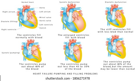 Heart Failure - Pumping and Filling Problems,  Systolic Dysfunction, Diastolic Dysfunction. Heart failure or congestive heart failure. Diseases of the Heart