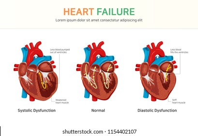 Heart failure, Systolic Dysfunction, Diastolic Dysfunction