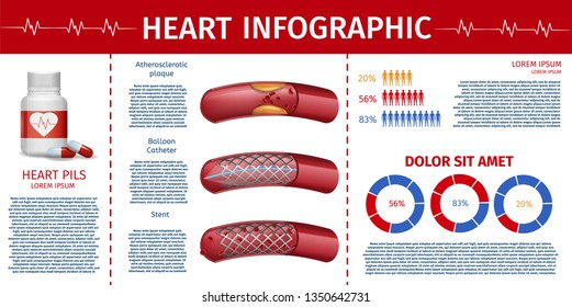 Heart Infographic Statistic Banner. Medical Flyer Cardiovascular Surgery Therapy, Pills List for Magazine. Academic Journal Conference Brochure. Vector Illustration Atherosclerotic Vessel Treatment