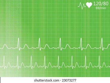 Heart monitor. Vector.