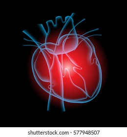 Heart pain, Heart x ray with black background