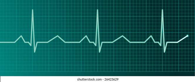 Heart pulse monitor
