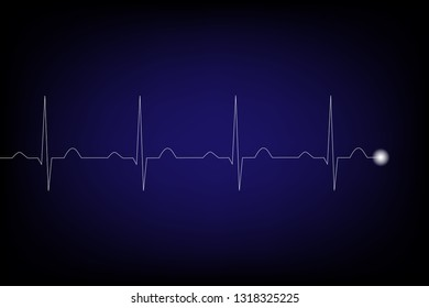 Heart pulse signal on monitor on dark blue background, Electrocardiography concept.
