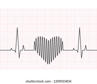 Heart rate line with grid in the background. Heartbeat, pulse and rythm, electrocardiogram and ECG concept. Vector illustration.