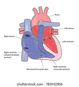Heart showing Ebstein's anomaly, with enlarged right atrium and abnormal tricuspid valve