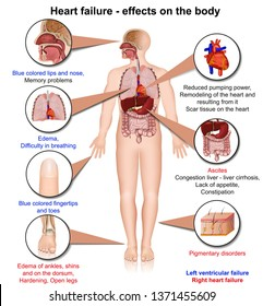 Hearth failure effects of the body 3d medical vector illustration on white background, infographic