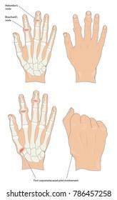 Heberden's and Bouchard's nodes in osteoarthritic hands