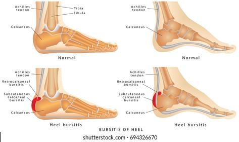 Heel Bursitis. Foot with normal heel and the foot with Haglund's deformity and bursitis