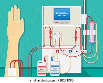 Hemodialysis Machine Equipment Procedure Room Kidney Patient Treatment in Clinic Hospital Blood Filter Dialysis