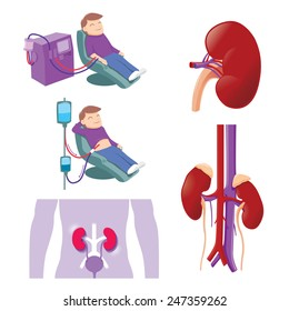 Hemodialysis and peritoneal dialysis are both used to treat kidney - vector illustration