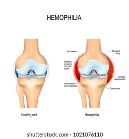 hemophilia. Healthy kneee and joint with Haemophilia. Labeled