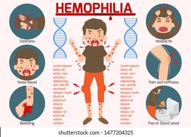 Hemophilia symptom Infographics elements. Sign and Symbols of Hemophilia. Health and Medical concept. Vector cartoon illustration isolated.