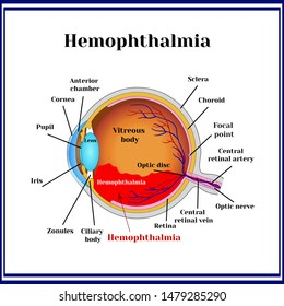 Hemophthalmia -  the presence of blood in the vitreous body (sometimes called hemorrhage in the eyeball).