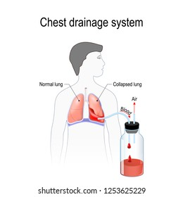 Hemothorax. Collapsed lung. abnormal collection of blood in the pleural space between the lung and the chest wall. Chest drainage system. Fluid collected in the chamber. Vector illustration