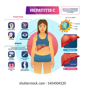 Hepatitis C vector illustration. Labeled viral infection explanation scheme. Liver inflammation with scar tissues and cirrhosis. Virus disease symptoms and spreads infographic. Yellow skin diagnosis.