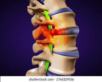 A herniated disc. Also called bulged, slipped or ruptured. Vector illustration.
