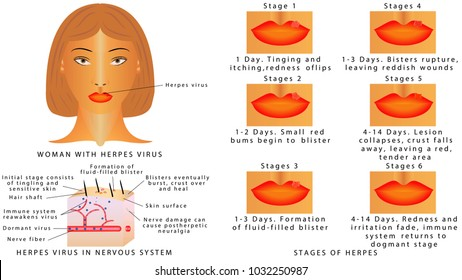 Herpes virus infections on the lips. Stages of herpes virus on the lips. Inflammation of the lip. Herpes Virus in nervous system. Woman with herpes virus on white background
