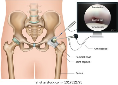 Hip arthroscopy 3d medical vector illustration on white background