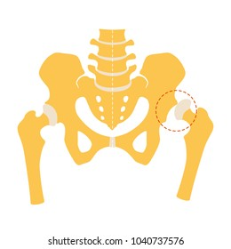 Hip dysplasia, flat design. Vector illustration, Isolated on white background.
