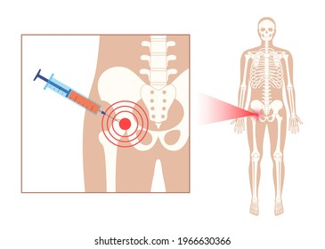 Hip joint cortisone injection. Pain and inflammation in the pelvis. Pelvic arthritis disease concept. Medical research in health care center. Bursitis treatment flat vector illustration for clinic.