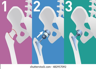 hip replacement arthroplasty diagram, vector illustration