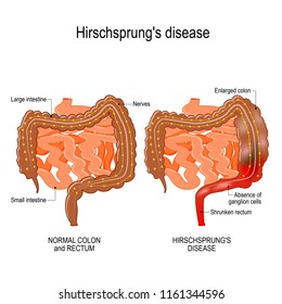 Hirschsprung's disease is a birth defect (nerves are missing from parts of the intestine). Constipation. illustration represent the human intestine (large and small).  Vector diagram