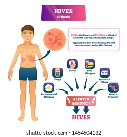 Hives urticaria vector illustration. Labeled skin rash explanation scheme. Skin problem with red rash, raised, itchy bumps. Alerted immunity symptoms and causes diagnosis. Epidermis illness reaction.