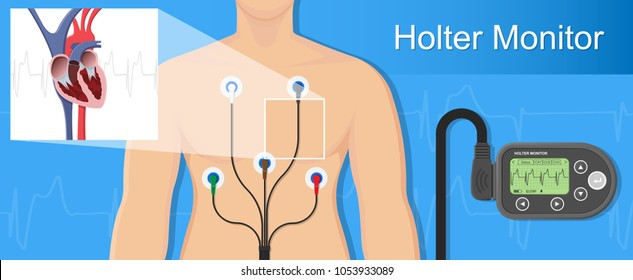Holter monitoring system tracking cardio problem failure sick irregular disorders daily diary by transducer for therapy cardioversion