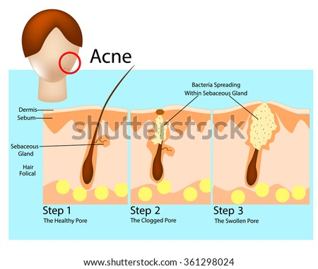 how acne develops acne stages formation stock vector royalty free