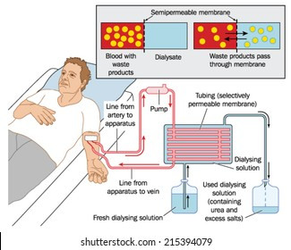 How blood dialysis works, showing a patient connected to a blood pump, semipermeable membrane and dialysing solution. Created in Adobe Illustrator.  EPS 10.