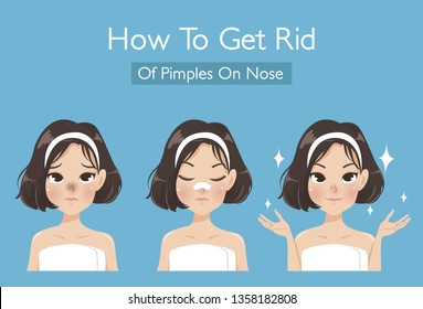 How to get rid of blackhead on the girl's nose to make the skin look more beautiful and younger.